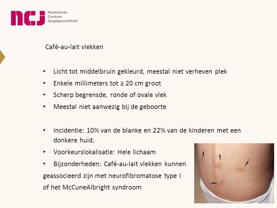 Café-au-lait vlekken • Licht tot middelbruin gekleurd, meestal niet verheven plek • Enkele millimeters tot ≥ 20 cm groot • Scherp begrensde, ronde of
