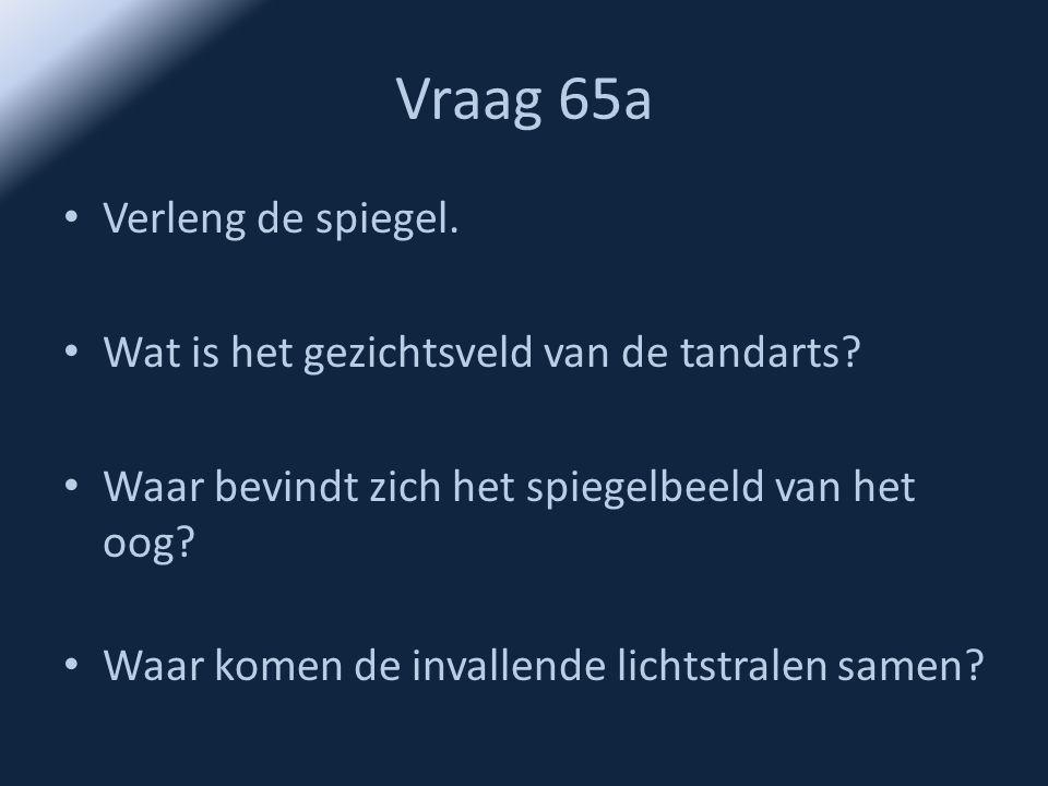 Vraag 65a • Verleng de spiegel. • Wat is het gezichtsveld van de tandarts? • Waar bevindt zich het spiegelbeeld van het oog? • Waar komen de invallend
