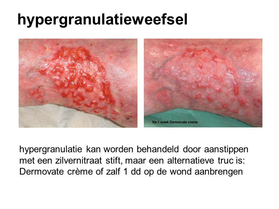 hypergranulatieweefsel hypergranulatie kan worden behandeld door aanstippen met een zilvernitraat stift, maar een alternatieve truc is: Dermovate crème of zalf 1 dd op de wond aanbrengen
