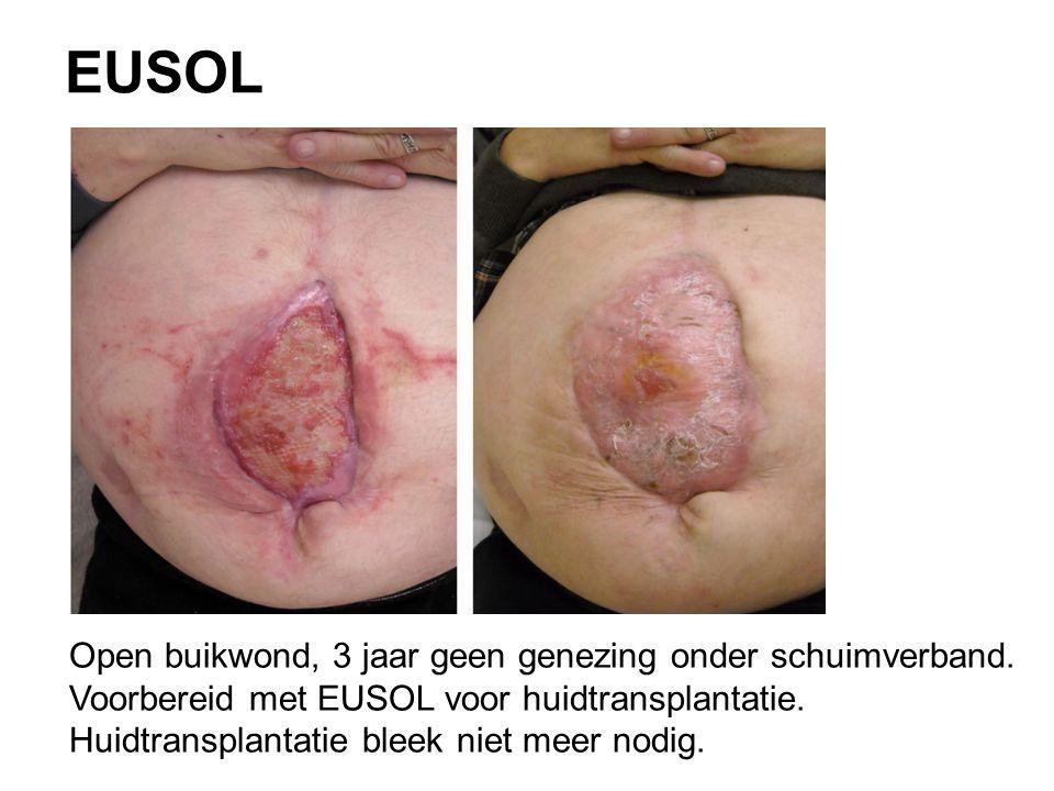 EUSOL Open buikwond, 3 jaar geen genezing onder schuimverband.