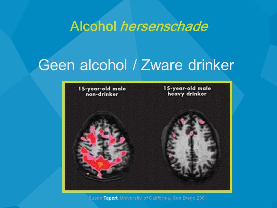 Geen alcohol / Zware drinker Susan Tapert, University of California, San Diego 2001 Alcohol hersenschade