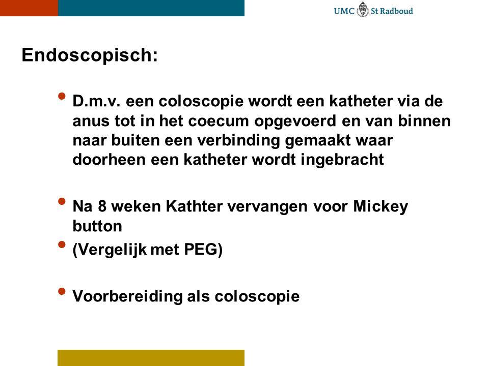 Endoscopisch: • D.m.v. een coloscopie wordt een katheter via de anus tot in het coecum opgevoerd en van binnen naar buiten een verbinding gemaakt waar