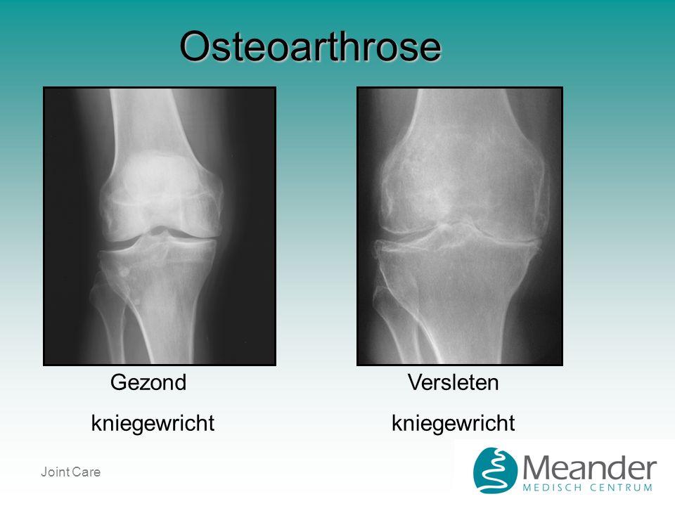 Joint Care Osteoarthrose Gezond kniegewricht Versleten kniegewricht