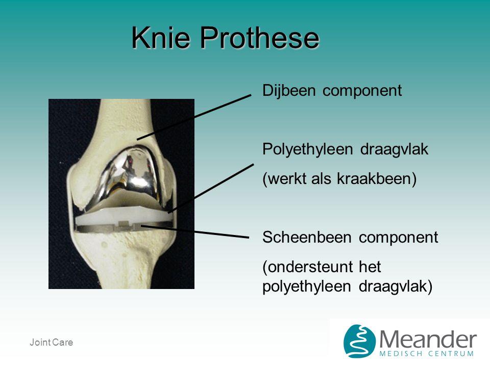 Joint Care Knie Prothese Dijbeen component Polyethyleen draagvlak (werkt als kraakbeen) Scheenbeen component (ondersteunt het polyethyleen draagvlak)