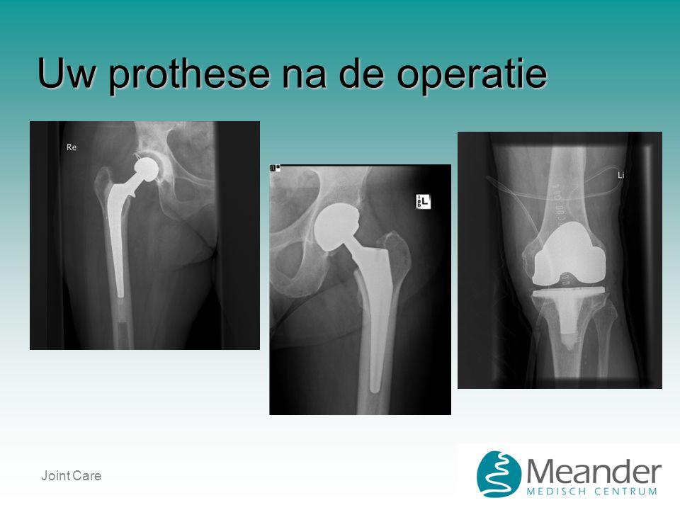 Uw prothese na de operatie