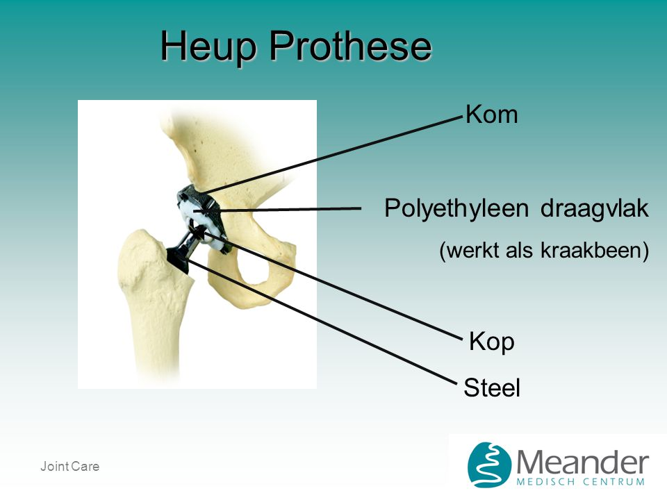 Joint Care Heup Prothese Kom Polyethyleen draagvlak (werkt als kraakbeen) Kop Steel