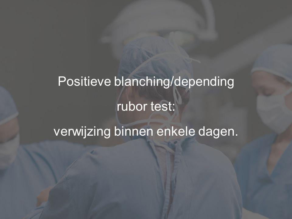 Positieve blanching/depending rubor test: verwijzing binnen enkele dagen.