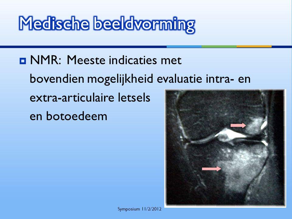  NMR: Meeste indicaties met bovendien mogelijkheid evaluatie intra- en extra-articulaire letsels en botoedeem Symposium 11/2/2012