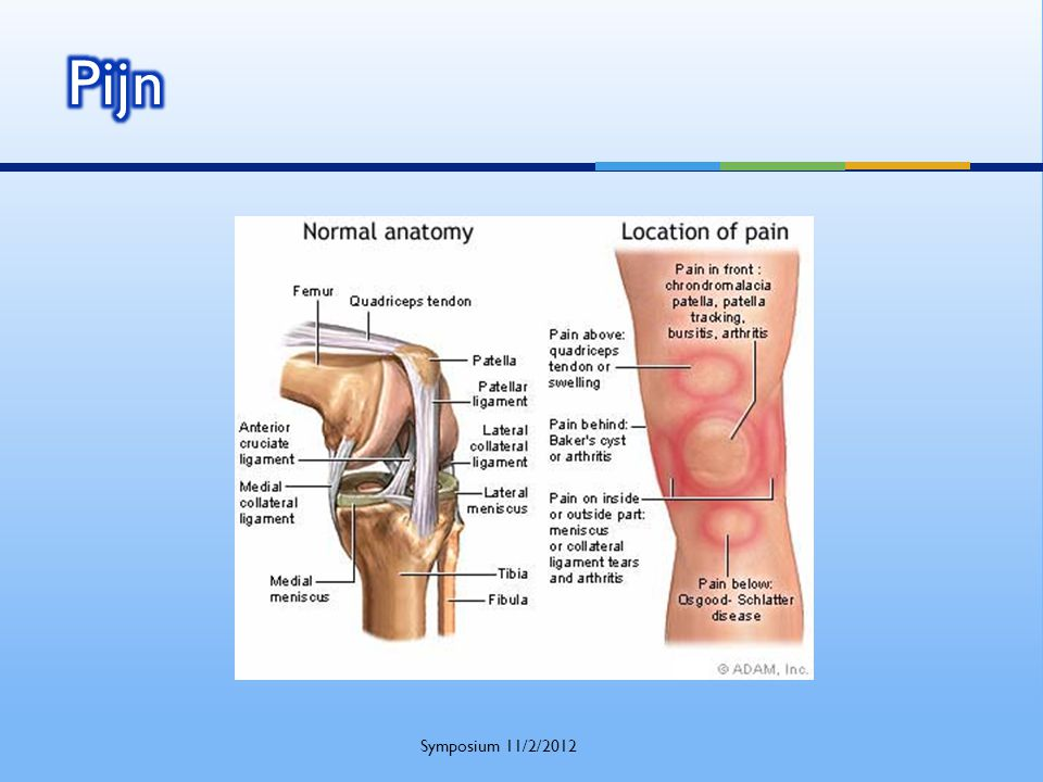 Grote meniscusscheur  Gewrichtsmuis  Grote kraakbeenflap  Supratentoriëel  Blokkagegevoel  Collateraal bandletsel Symposium 11/2/2012