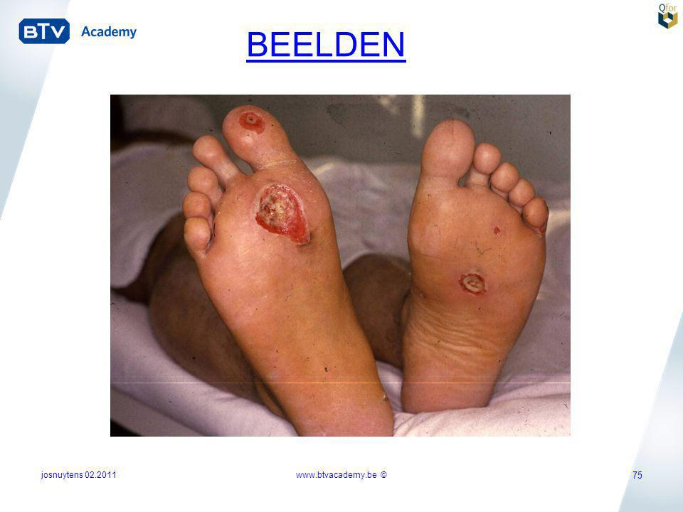 josnuytens 02.2011www.btvacademy.be © 75 BEELDEN