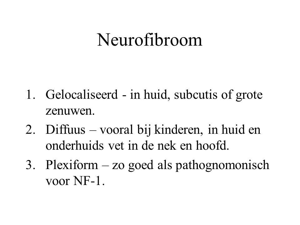 Neurofibroom 1.Gelocaliseerd - in huid, subcutis of grote zenuwen. 2.Diffuus – vooral bij kinderen, in huid en onderhuids vet in de nek en hoofd. 3.Pl