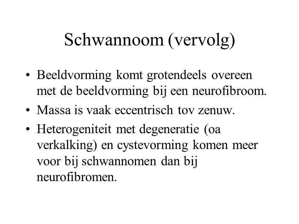 Schwannoom (vervolg) •Beeldvorming komt grotendeels overeen met de beeldvorming bij een neurofibroom. •Massa is vaak eccentrisch tov zenuw. •Heterogen