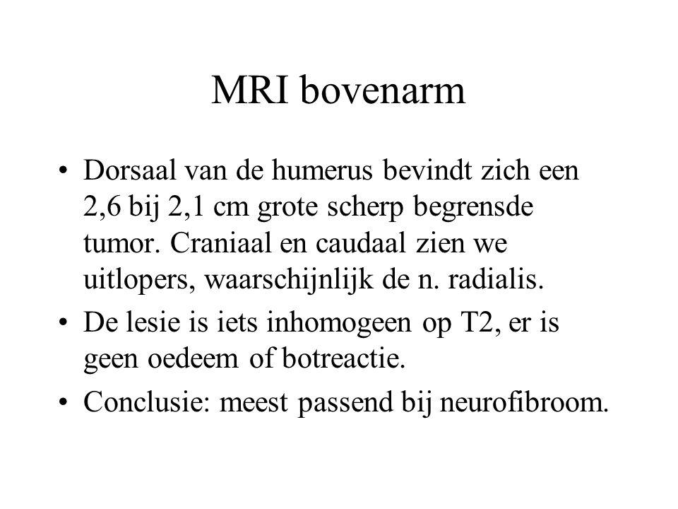 MRI bovenarm •Dorsaal van de humerus bevindt zich een 2,6 bij 2,1 cm grote scherp begrensde tumor. Craniaal en caudaal zien we uitlopers, waarschijnli