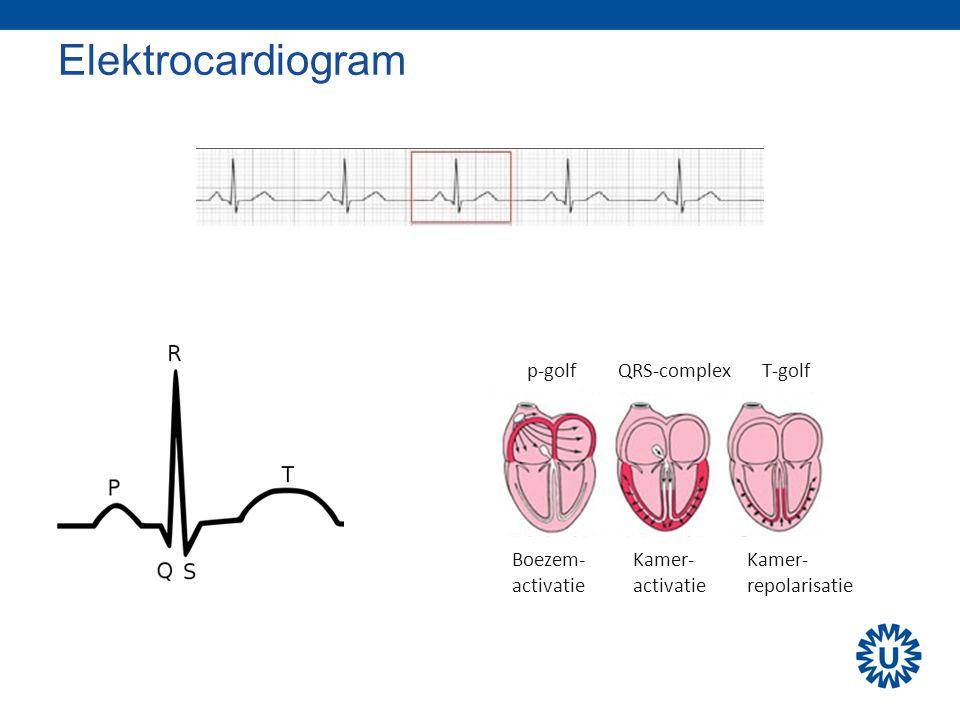 Elektrocardiogram p-golfQRS-complexT-golf Boezem- activatie Kamer- activatie Kamer- repolarisatie