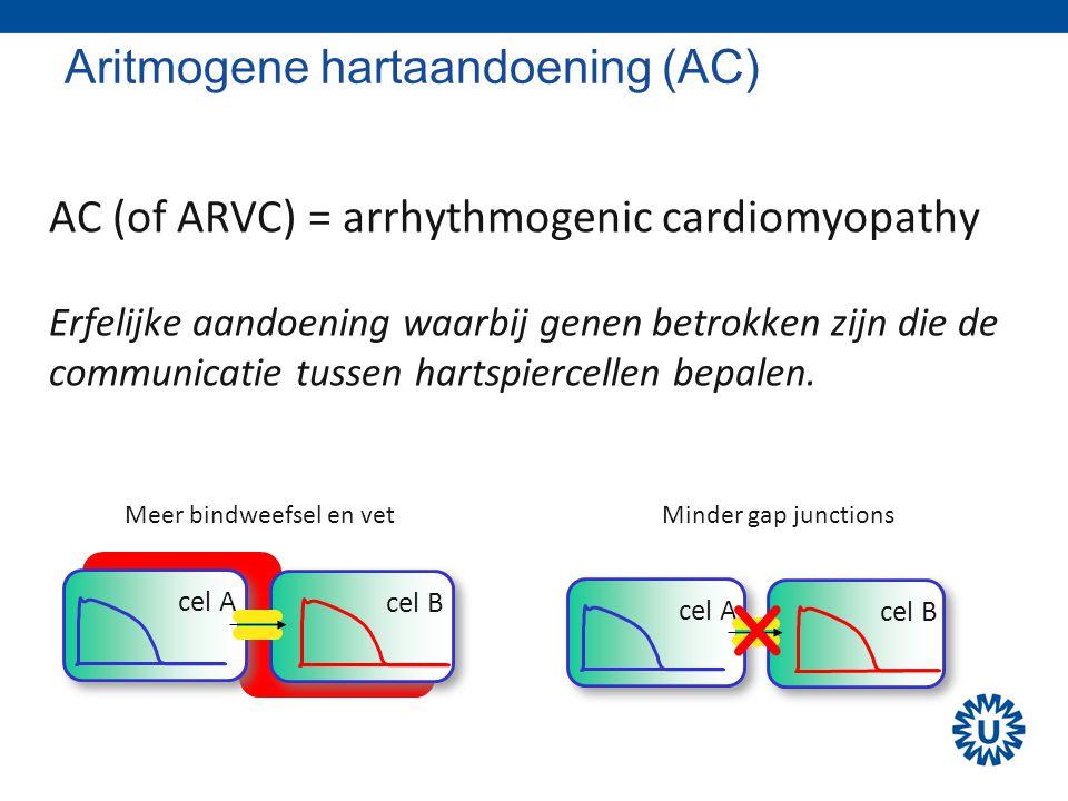 Aritmogene hartaandoening (AC) AC (of ARVC) = arrhythmogenic cardiomyopathy Erfelijke aandoening waarbij genen betrokken zijn die de communicatie tuss