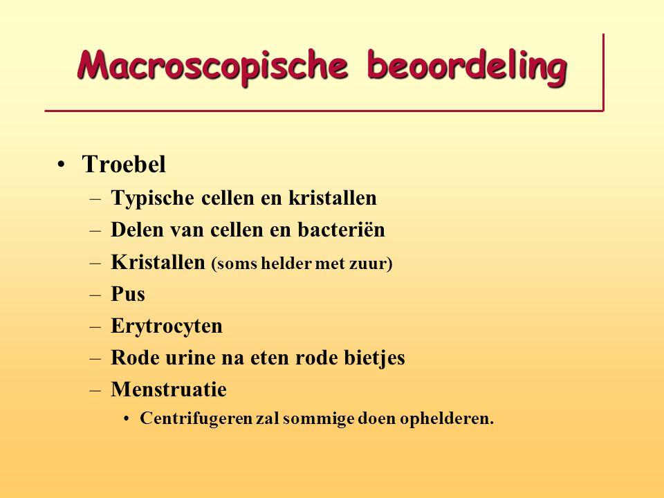 Macroscopische beoordeling •Troebel –Typische cellen en kristallen –Delen van cellen en bacteriën –Kristallen (soms helder met zuur) –Pus –Erytrocyten