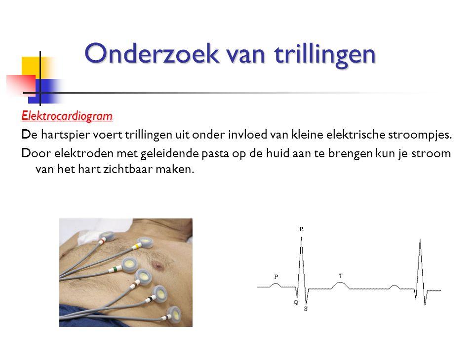 Elektrocardiogram De hartspier voert trillingen uit onder invloed van kleine elektrische stroompjes. Door elektroden met geleidende pasta op de huid a
