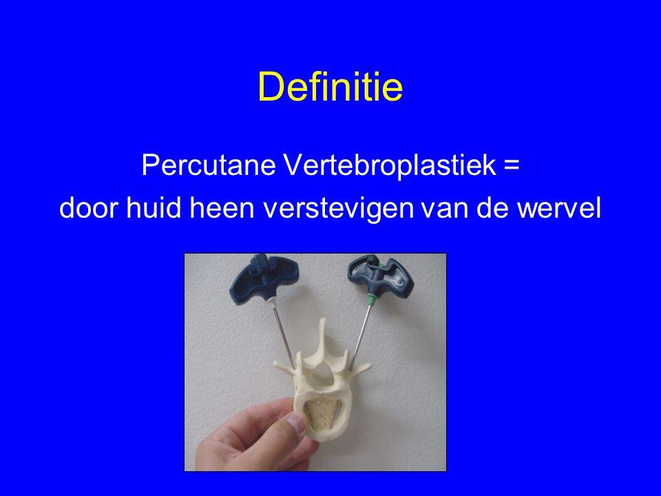 Definitie Percutane Vertebroplastiek = door huid heen verstevigen van de wervel