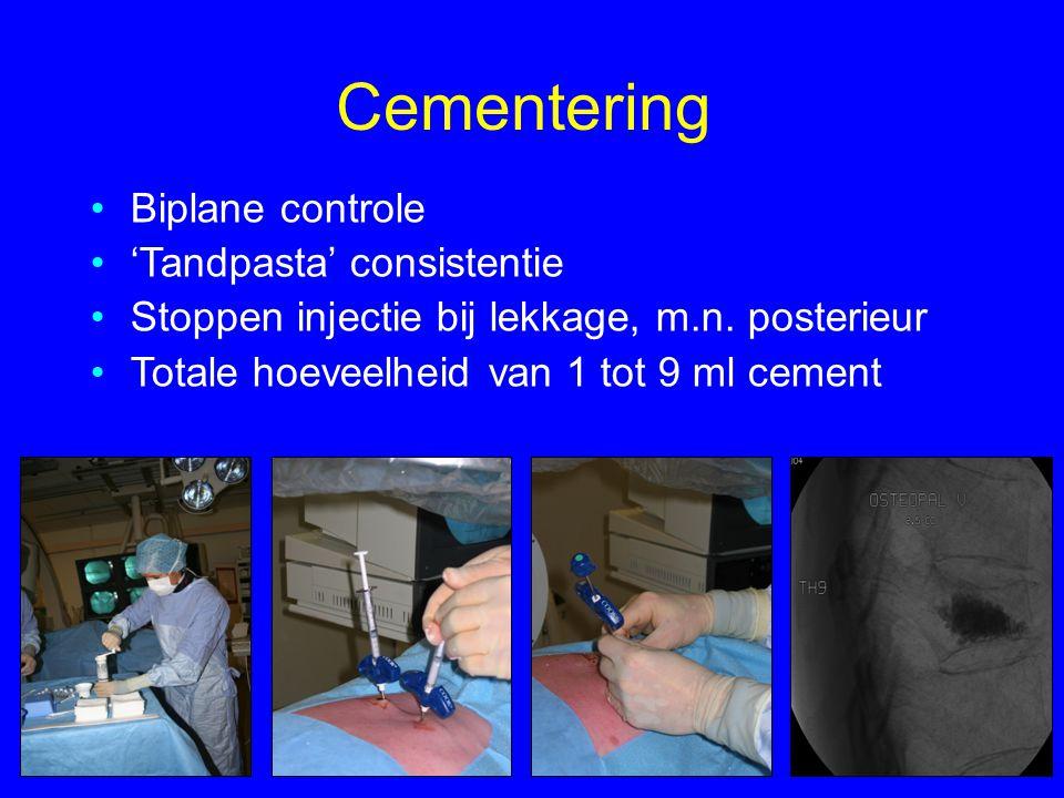 Cementering •Biplane controle •'Tandpasta' consistentie •Stoppen injectie bij lekkage, m.n. posterieur •Totale hoeveelheid van 1 tot 9 ml cement