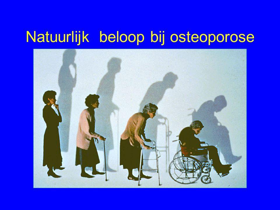 Natuurlijk beloop bij osteoporose