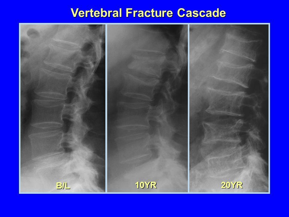 B/L 10YR20YR Vertebral Fracture Cascade