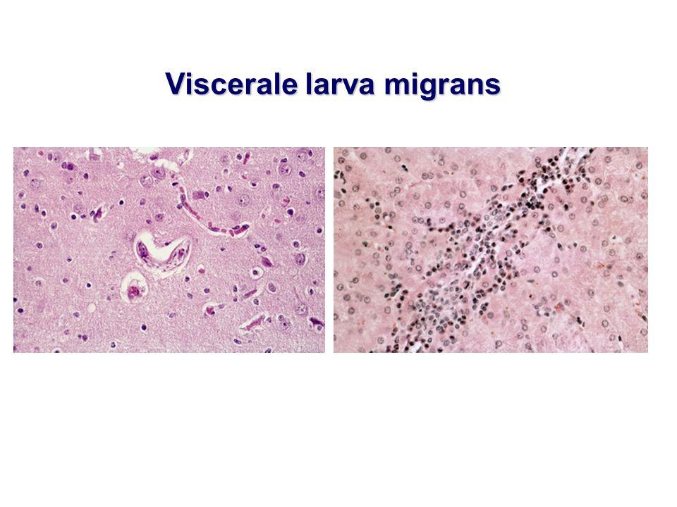 Viscerale larva migrans