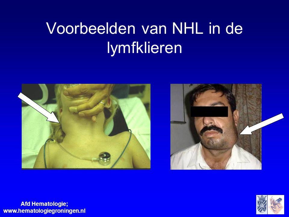 Afd Hematologie; www.hematologiegroningen.nl Voorbeelden van NHL in de lymfklieren