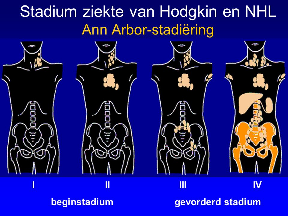 beginstadium Stadium ziekte van Hodgkin en NHL Ann Arbor-stadiëring gevorderd stadium IIIIIIIV