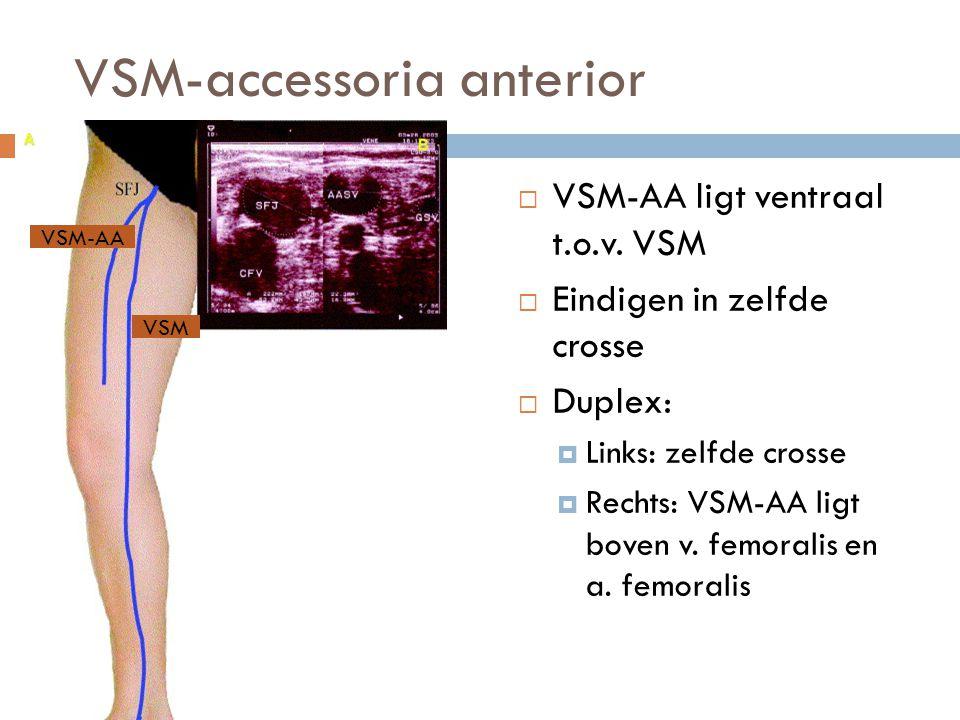 VSM-accessoria anterior  VSM-AA ligt ventraal t.o.v. VSM  Eindigen in zelfde crosse  Duplex:  Links: zelfde crosse  Rechts: VSM-AA ligt boven v.