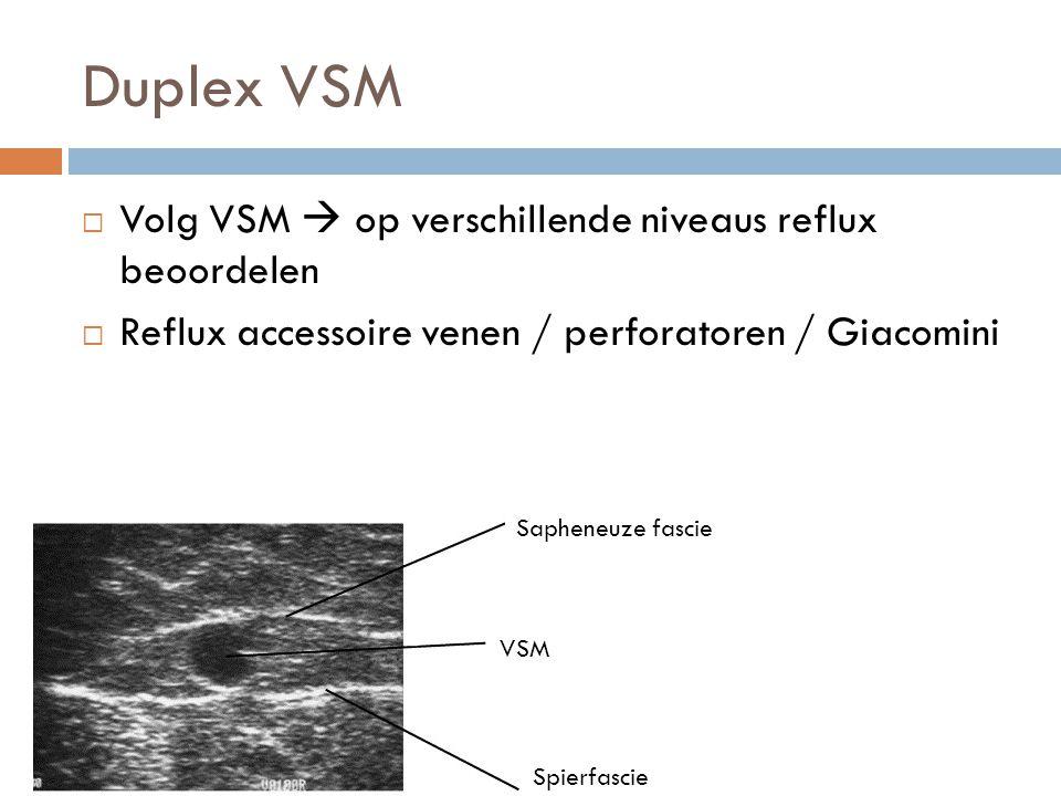 Duplex VSM  Volg VSM  op verschillende niveaus reflux beoordelen  Reflux accessoire venen / perforatoren / Giacomini Sapheneuze fascie VSM Spierfas