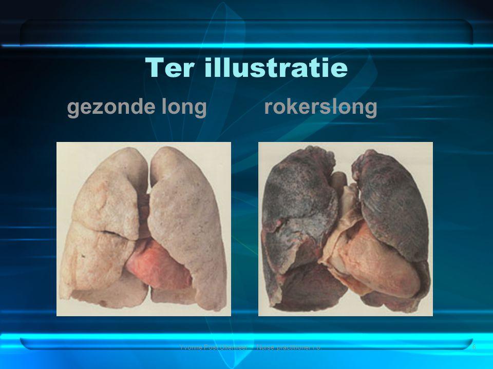 Yvonne Post Uiterweer - Nurse practitioner i.o.6 Ter illustratie gezonde long rokerslong