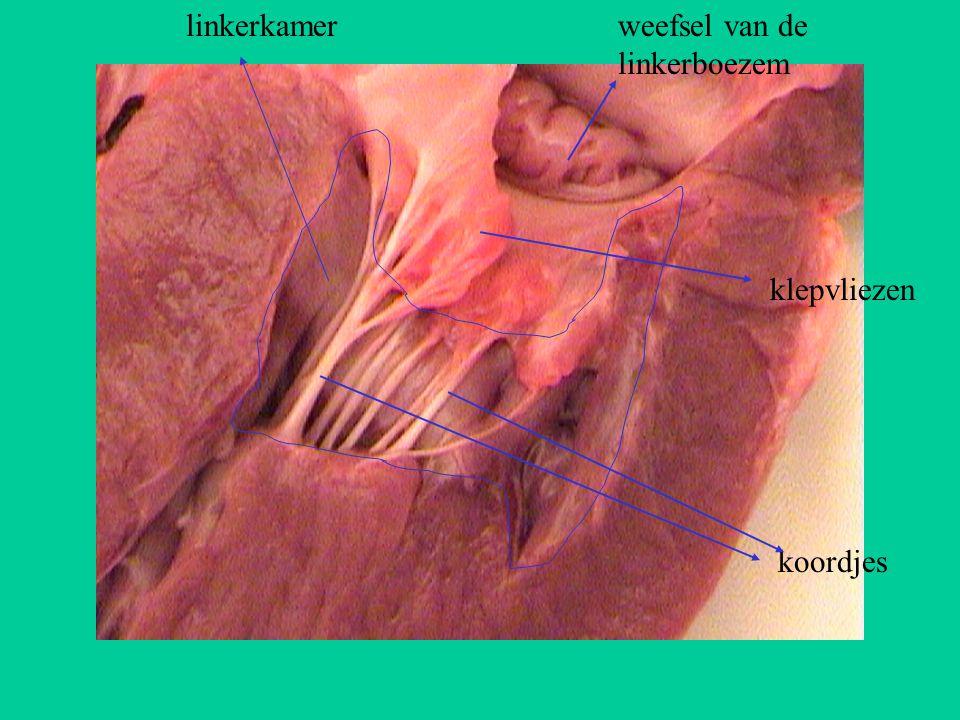 koordjes linkerkamerweefsel van de linkerboezem klepvliezen