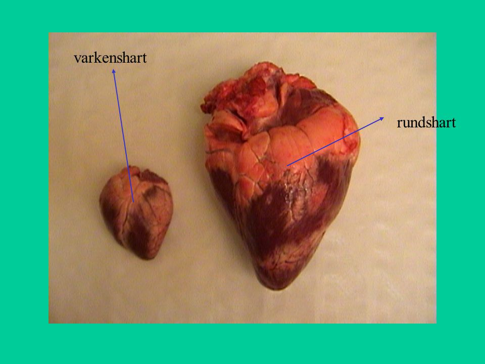 aorta linkerboezem longslagader rechterboezem