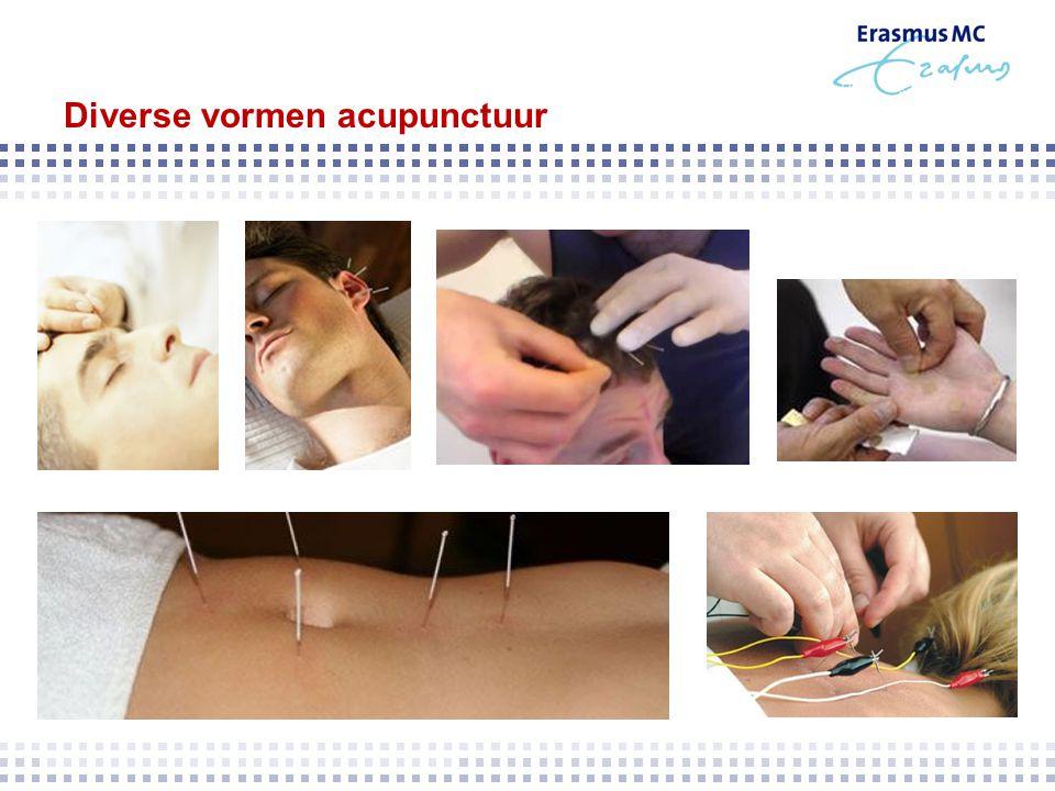 Diverse vormen acupunctuur