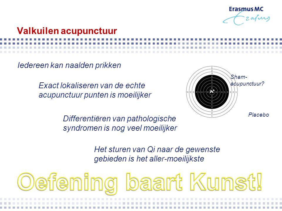 Valkuilen acupunctuur Exact lokaliseren van de echte acupunctuur punten is moeilijker Differentiëren van pathologische syndromen is nog veel moeilijke