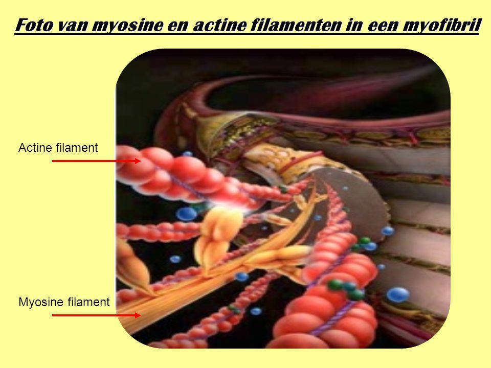 Foto van myosine en actine filamenten in een myofibril Actine filament Myosine filament