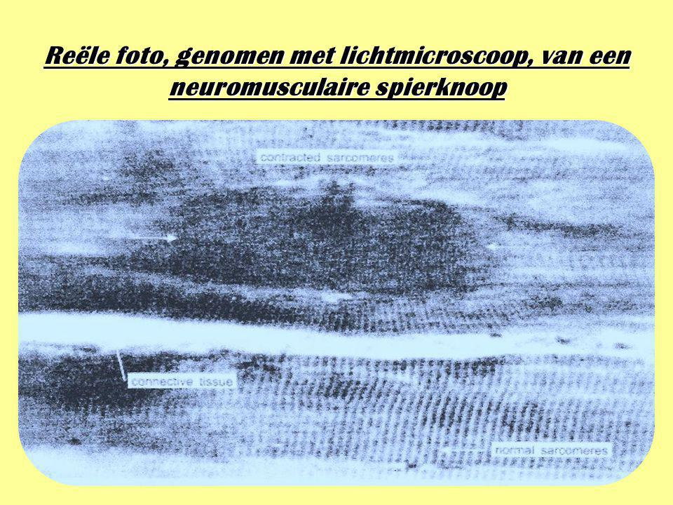 Reële foto, genomen met lichtmicroscoop, van een neuromusculaire spierknoop