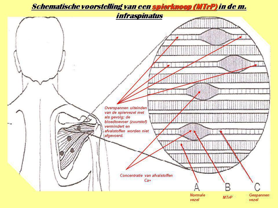 Schematische voorstelling van een spierknoop (MTrP) in de m. infraspinatus Concentratie van afvalstoffen Ca+ Overspannen uiteinden van de spiervezel m
