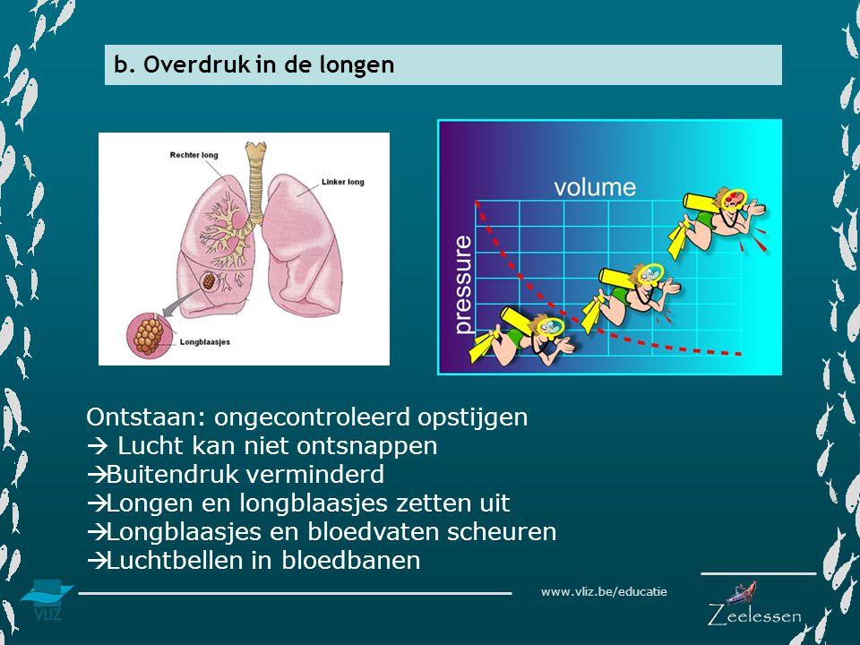 www.vliz.be/educatie b. Overdruk in de longen Ontstaan: ongecontroleerd opstijgen  Lucht kan niet ontsnappen  Buitendruk verminderd  Longen en long
