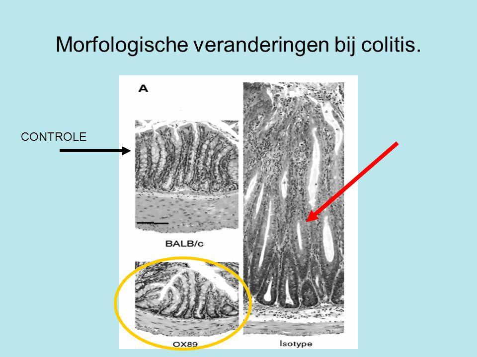 Morfologische veranderingen bij colitis. CONTROLE
