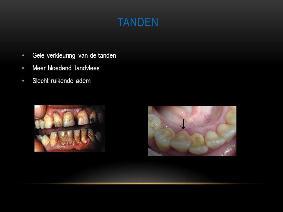 TANDEN • Gele verkleuring van de tanden • Meer bloedend tandvlees • Slecht ruikende adem
