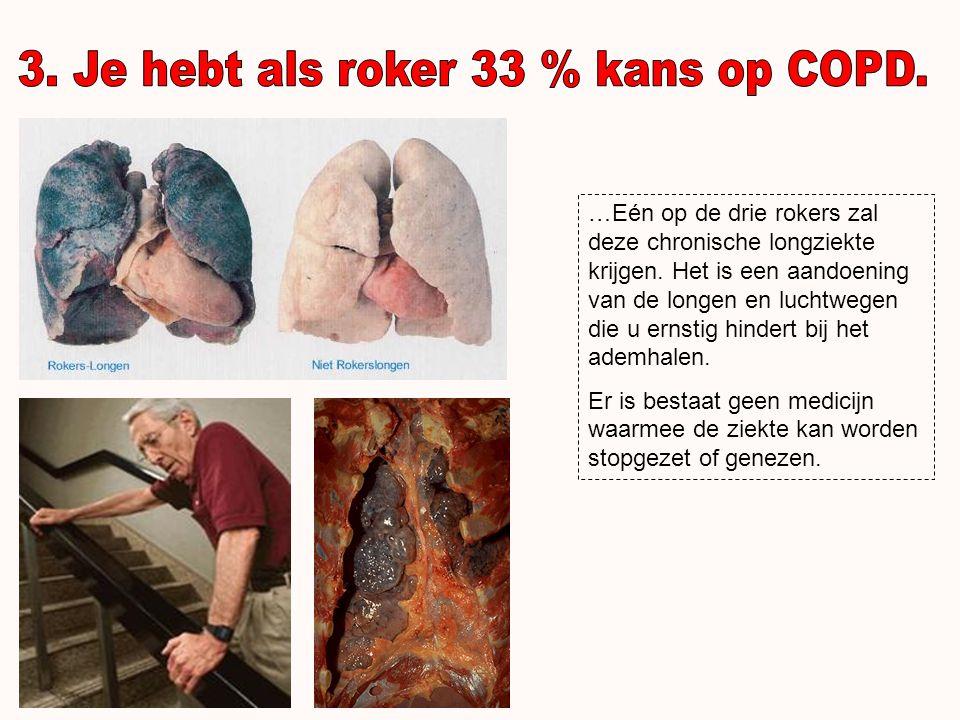 …Roken veroorzaakt mondkanker en het verlies van tanden.