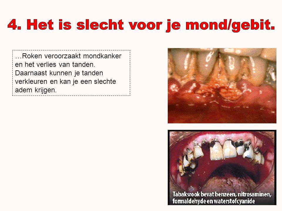 …Bij rokers kunnen de bloedvaten vernauwen door nicotine gebruik.