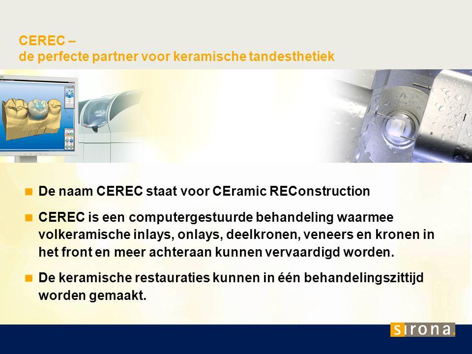 De naam CEREC staat voor CEramic REConstruction CEREC is een computergestuurde behandeling waarmee volkeramische inlays, onlays, deelkronen, veneers e