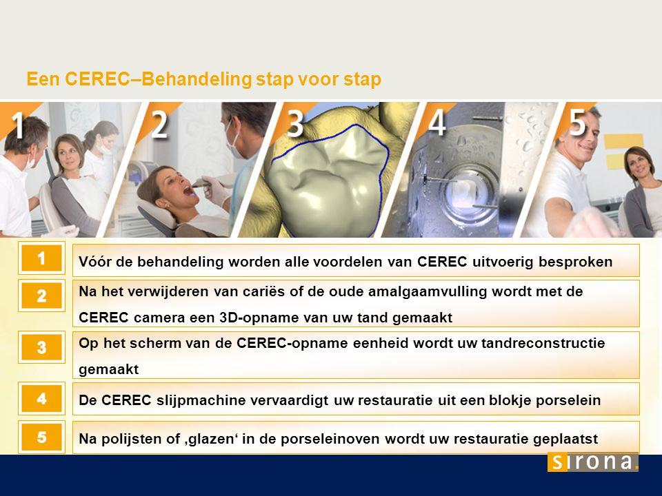 Een CEREC–Behandeling stap voor stap Vóór de behandeling worden alle voordelen van CEREC uitvoerig besproken Na het verwijderen van cariës of de oude