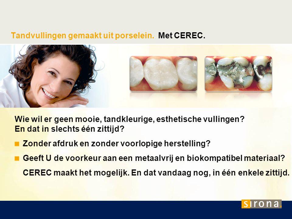Tandvullingen gemaakt uit porselein. Met CEREC. Wie wil er geen mooie, tandkleurige, esthetische vullingen? En dat in slechts één zittijd? Zonder afdr