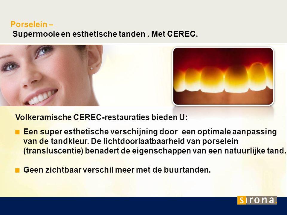 Porselein – Supermooie en esthetische tanden. Met CEREC. Volkeramische CEREC-restauraties bieden U: Een super esthetische verschijning door een optima