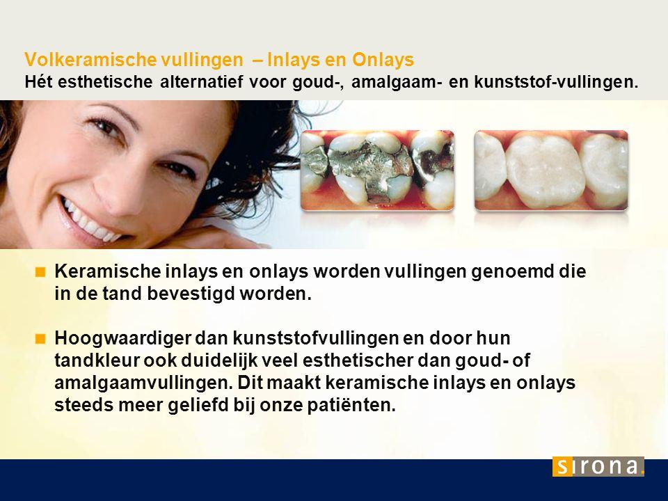 Volkeramische vullingen – Inlays en Onlays Hét esthetische alternatief voor goud-, amalgaam- en kunststof-vullingen. Keramische inlays en onlays worde
