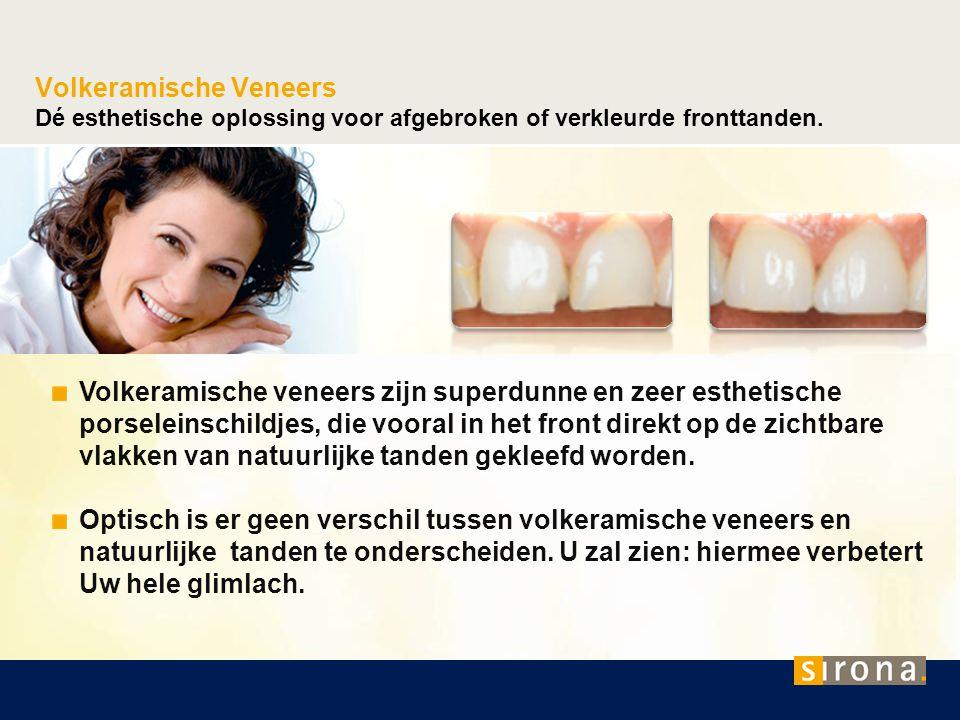 Volkeramische Kronen Dé esthetische oplossing voor de verzorging van afgebroken tanden.