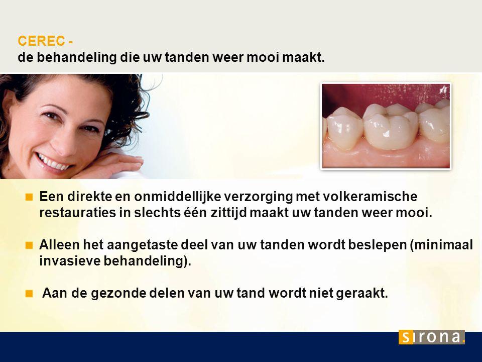 CEREC - de behandeling die uw tanden weer mooi maakt. Een direkte en onmiddellijke verzorging met volkeramische restauraties in slechts één zittijd ma